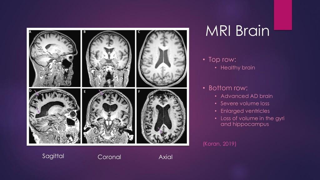MRI Brain • Top row: • Healthy brain • Bottom r...