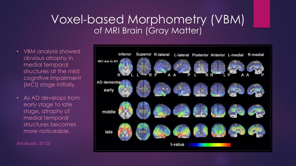 Voxel-based Morphometry (VBM) of MRI Brain (Gra...