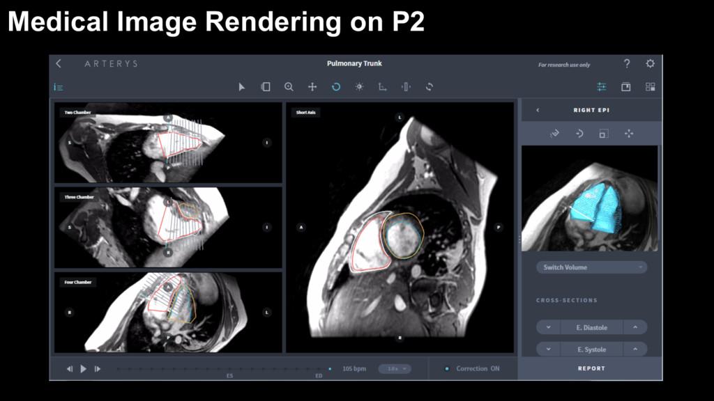 Medical Image Rendering on P2