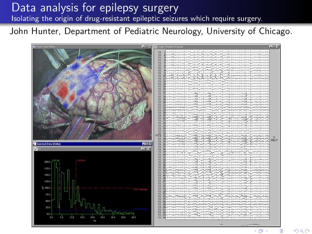 Data analysis for epilepsy surgery Isolating th...