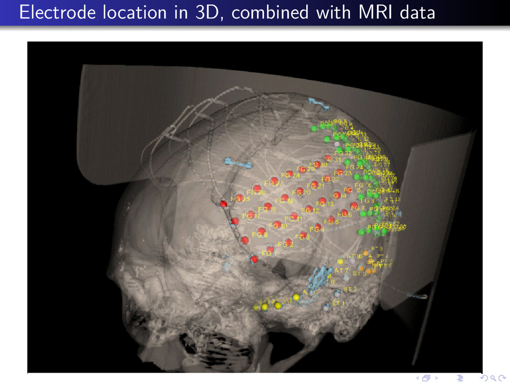 Electrode location in 3D, combined with MRI data