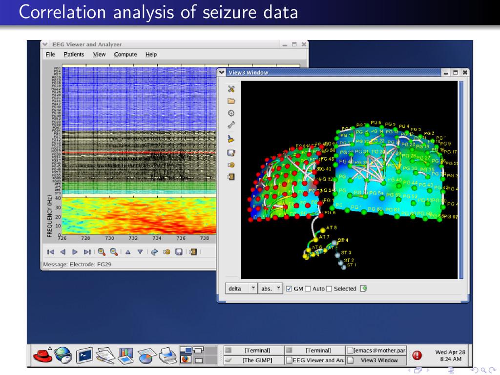 Correlation analysis of seizure data