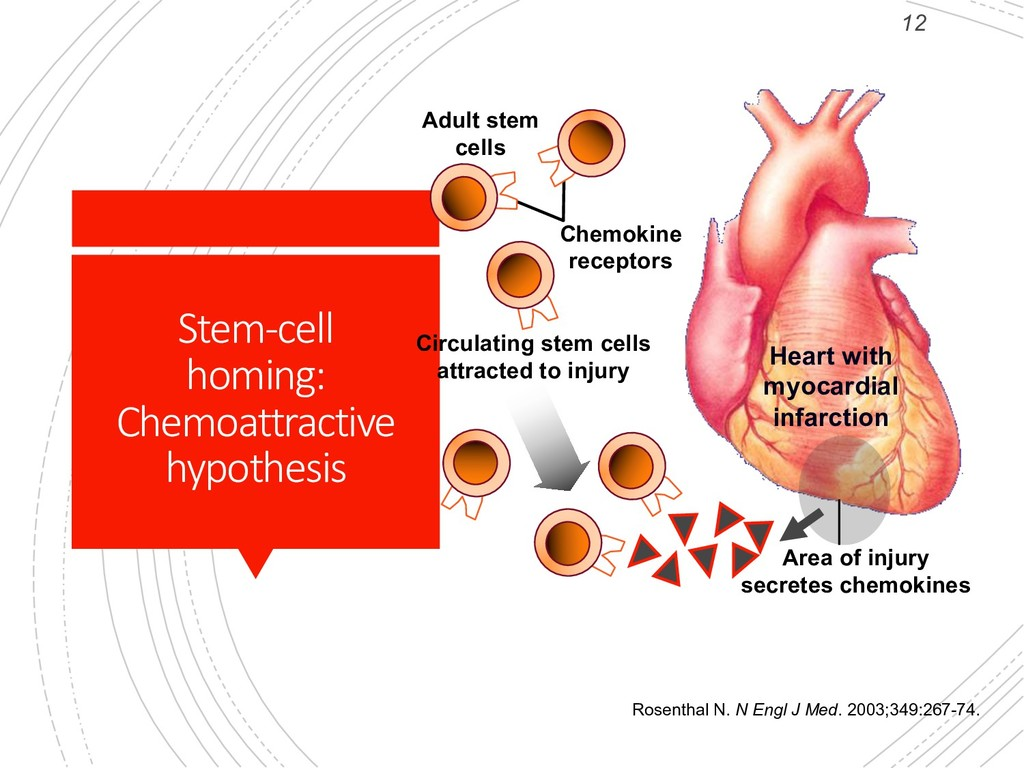 12 Stem-cell homing: Chemoattractive hypothesis...