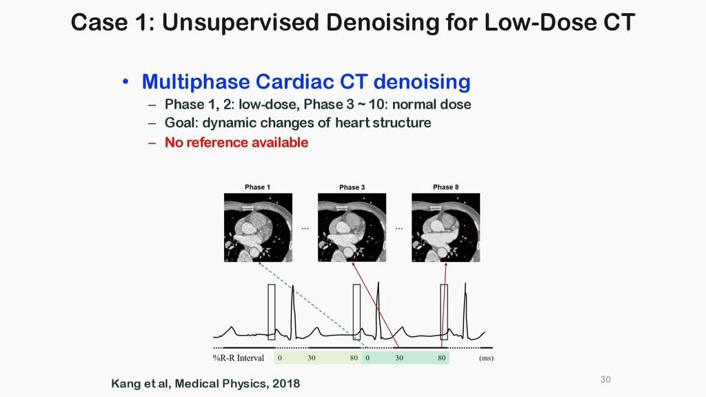 30 • Multiphase Cardiac CT denoising – Phase 1,...