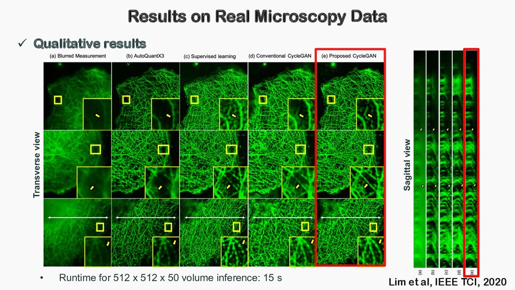 Results on Real Microscopy Data ü Qualitative r...