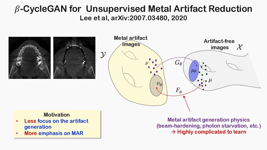 -CycleGAN for Unsupervised Metal Artifact Reduc...
