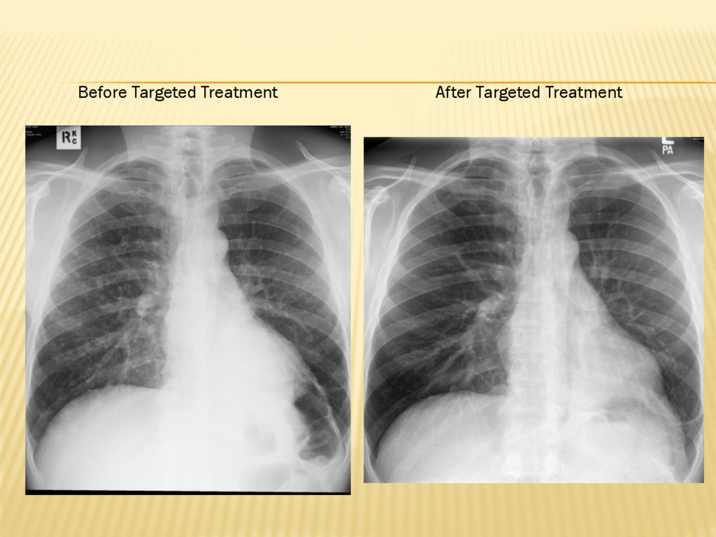 Before Targeted Treatment After Targeted Treatm...