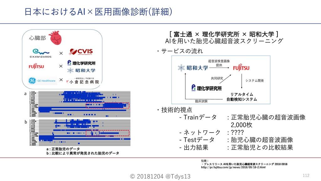 © 20181204 @Tdys13 112 ⽇本におけるAI×医⽤画像診断(詳細) <...