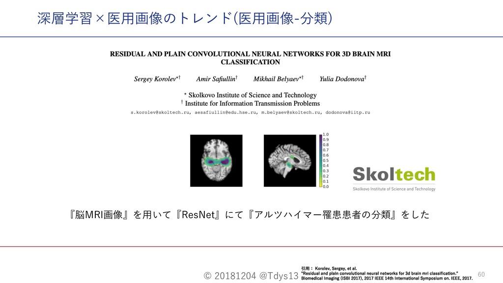 © 20181204 @Tdys13 60 『脳MRI画像』を⽤いて『ResNet』にて『アル...