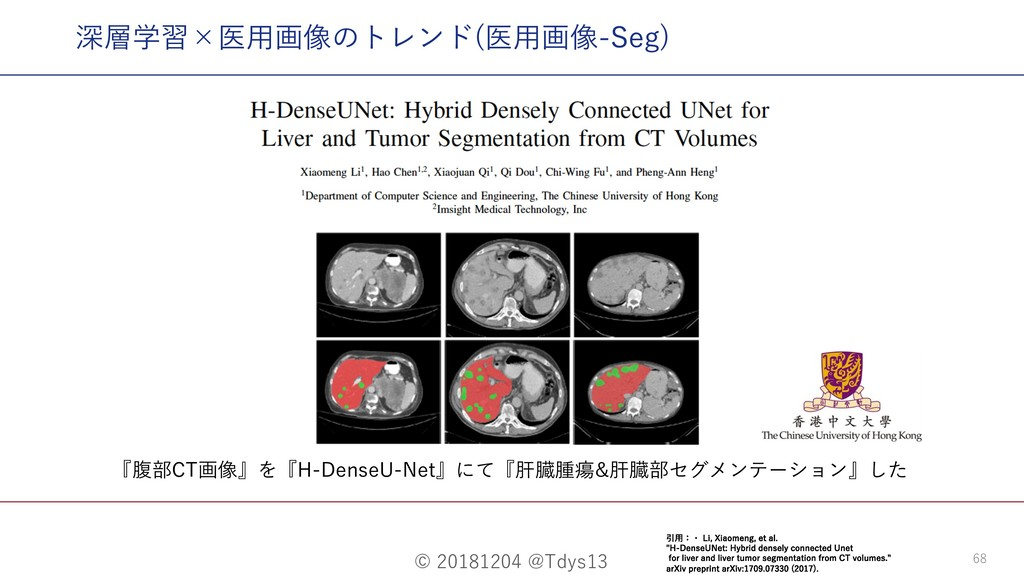 © 20181204 @Tdys13 68 『腹部CT画像』を『H-DenseU-Net』にて...