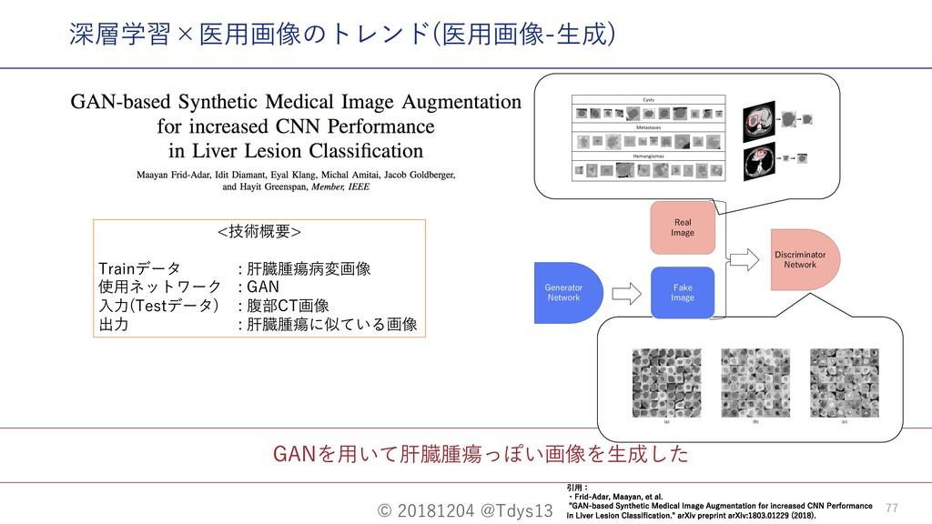 © 20181204 @Tdys13 77 GANを⽤いて肝臓腫瘍っぽい画像を⽣成した <技術...