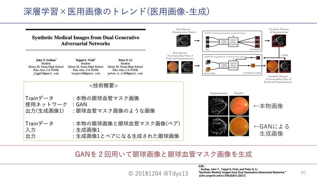 © 20181204 @Tdys13 80 GANを2回⽤いて眼球画像と眼球⾎管マスク画像を⽣...