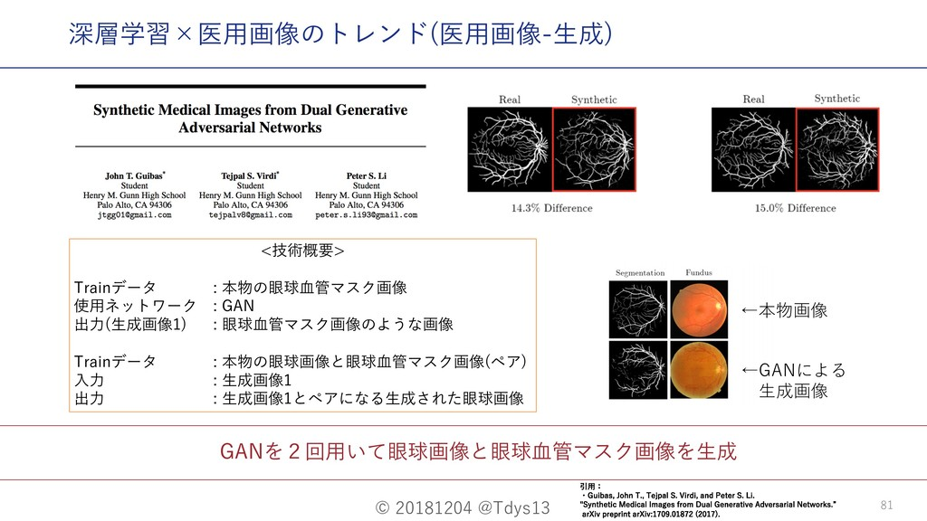 © 20181204 @Tdys13 81 GANを2回⽤いて眼球画像と眼球⾎管マスク画像を⽣...