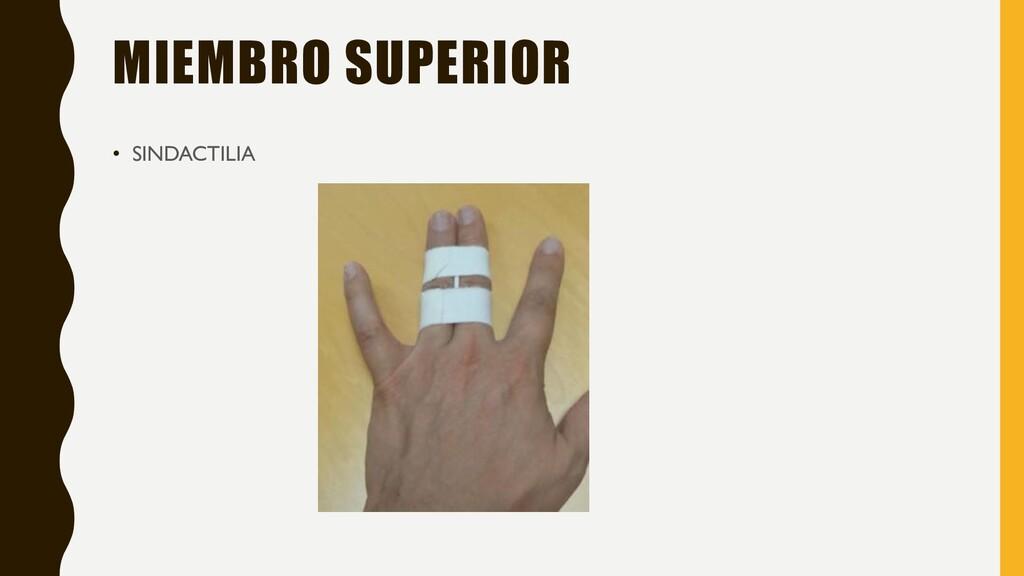 MIEMBRO SUPERIOR • SINDACTILIA