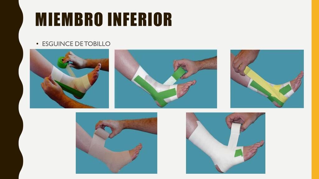 MIEMBRO INFERIOR • ESGUINCE DE TOBILLO