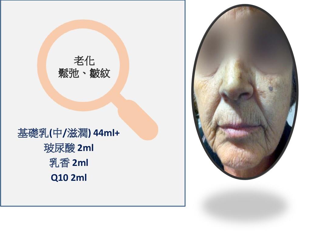 老化 鬆弛、皺紋 基礎乳(中/滋潤) 44ml+ 玻尿酸 2ml 乳香 2ml Q10 2ml