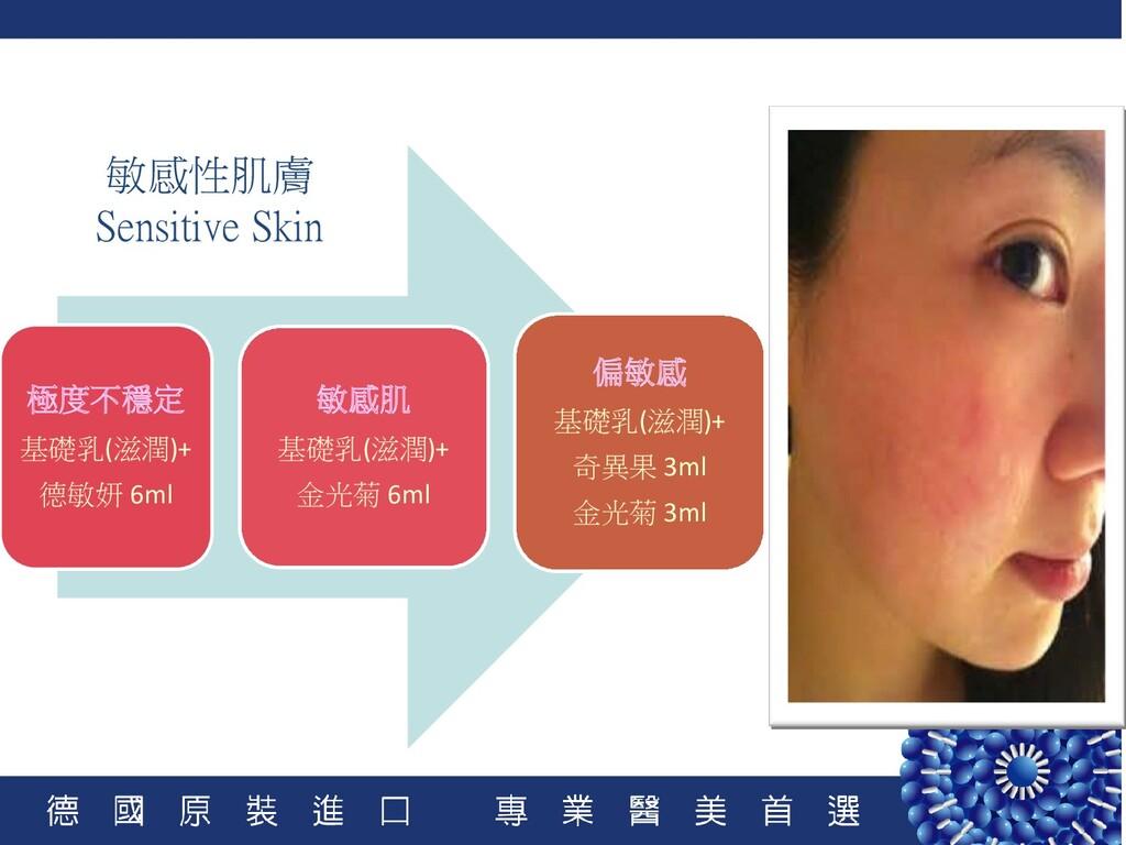 敏感性肌膚 Sensitive Skin 極度不穩定 基礎乳(滋潤)+ 德敏妍 6ml 敏感肌...
