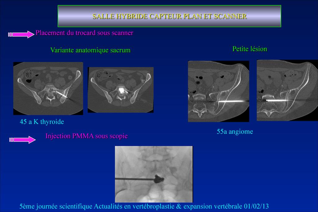 Variante anatomique sacrum SALLE HYBRIDE CAPTEU...