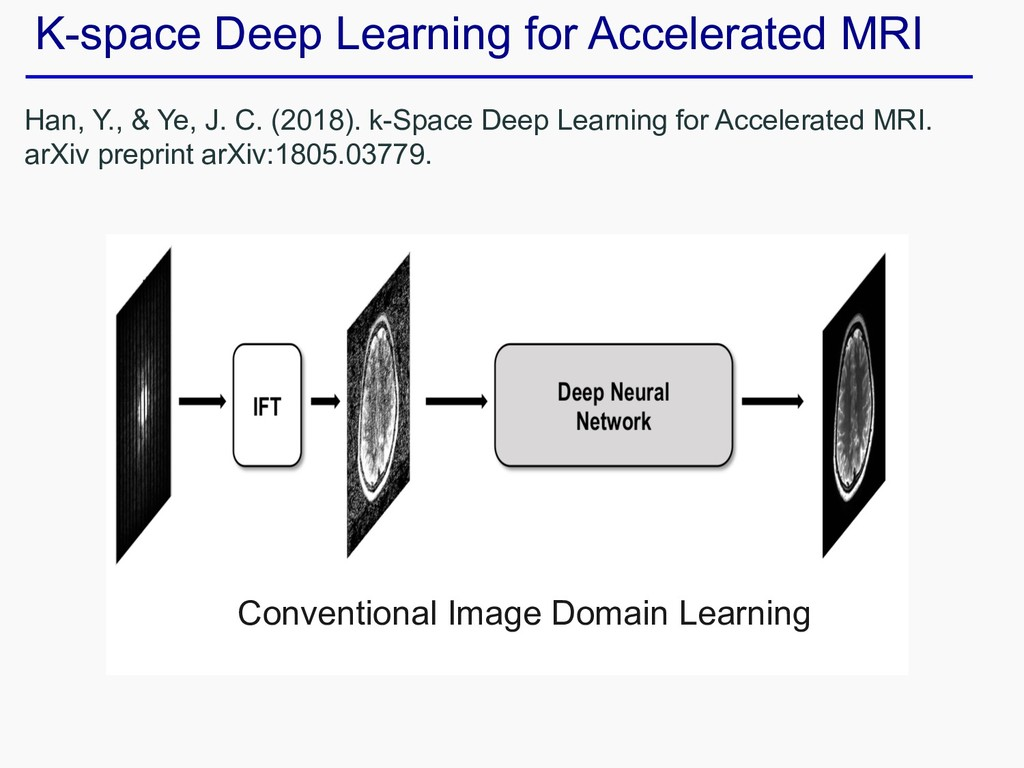 K-space Deep Learning for Accelerated MRI Han, ...