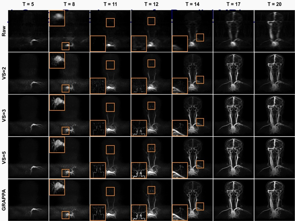 k-Space Deep Learning for Parallel MRI Cha et a...