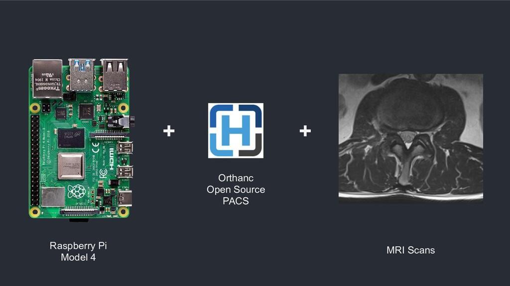 Orthanc Open Source PACS + + Raspberry Pi Model...