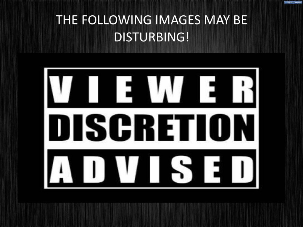 THE FOLLOWING IMAGES MAY BE DISTURBING!