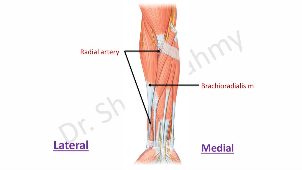 Radial artery Brachioradialis m Lateral Medial