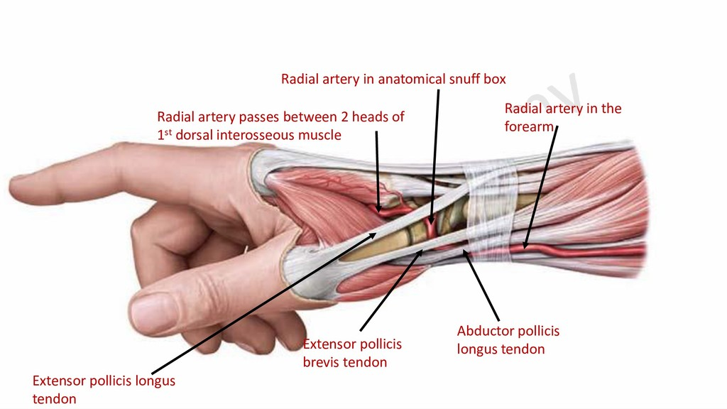 Radial artery in the forearm Radial artery in a...