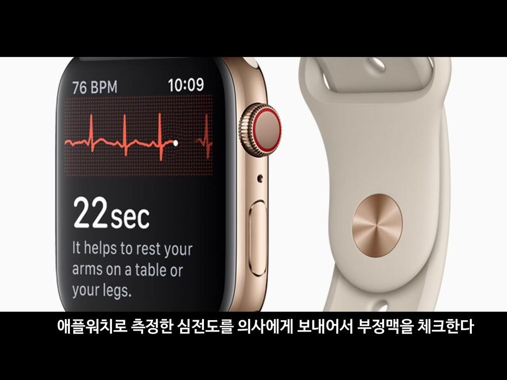 애플워치로 측정한 심전도를 의사에게 보내어서 부정맥을 체크한다