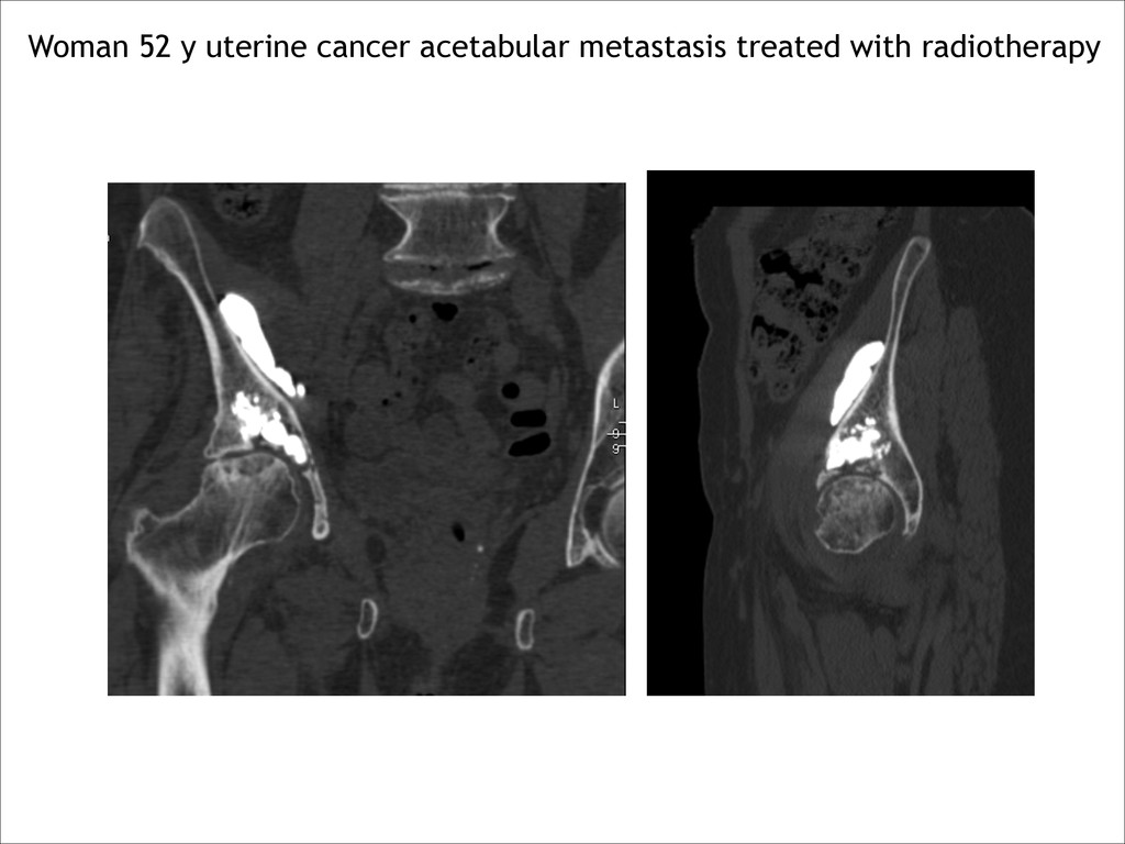 Woman 52 y uterine cancer acetabular metastasis...