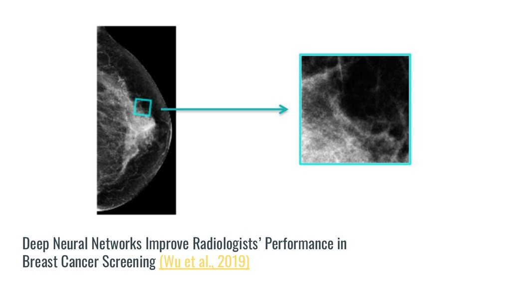Deep Neural Networks Improve Radiologists' Perf...