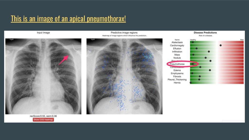 This is an image of an apical pneumothorax!