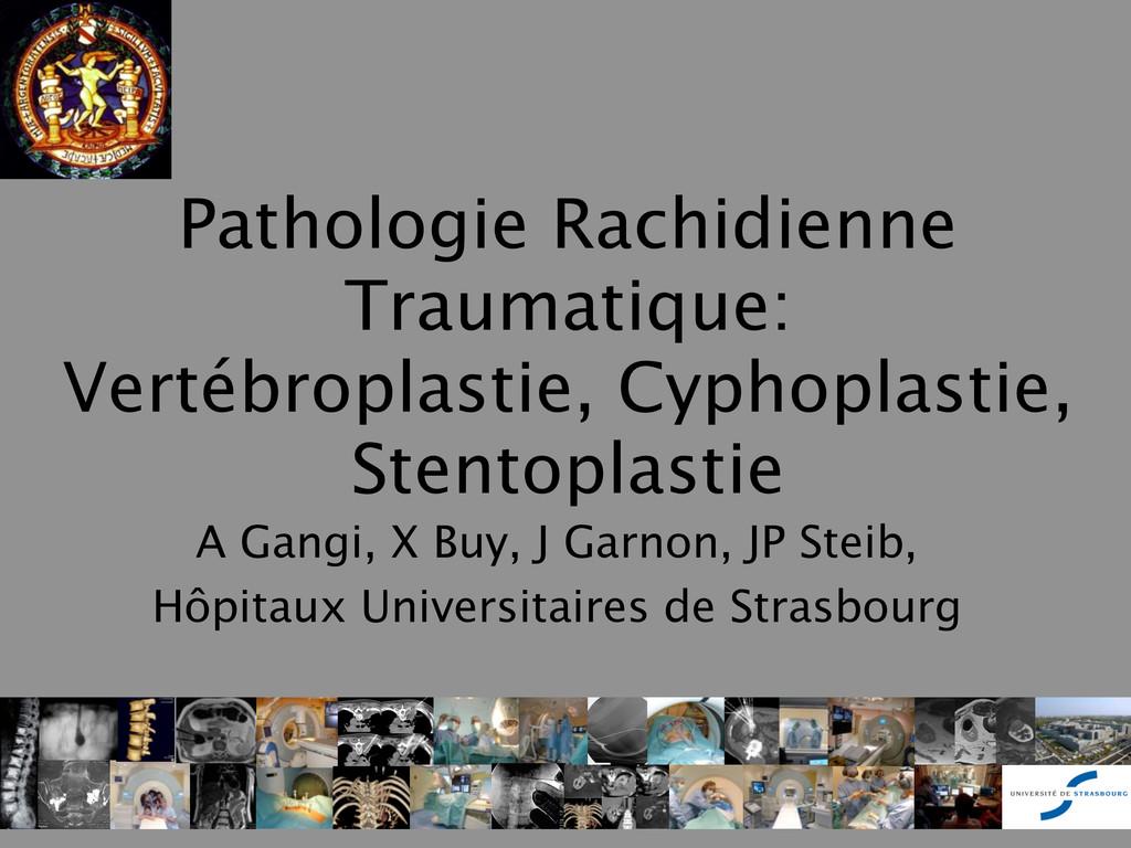 Pathologie Rachidienne Traumatique: Vertébropla...