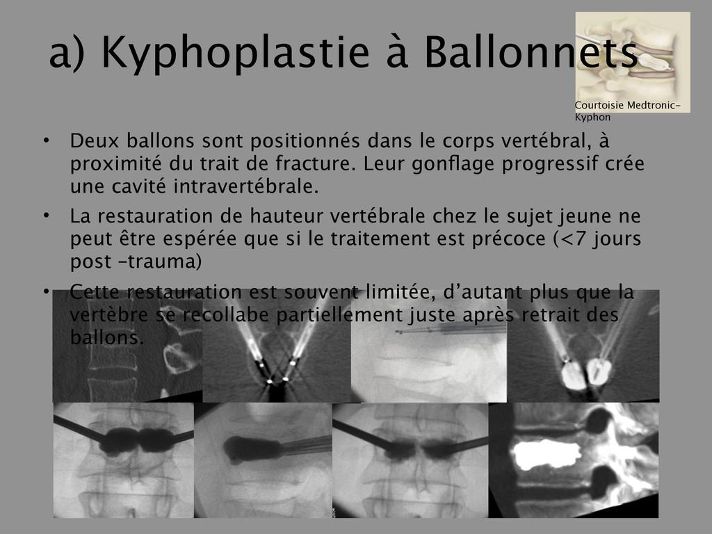 a) Kyphoplastie à Ballonnets • Deux ballons son...