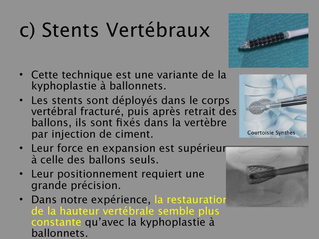 c) Stents Vertébraux • Cette technique est une ...