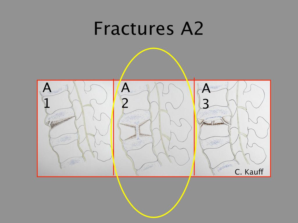 Fractures A2 A 1 A 2 A 3 C. Kauff