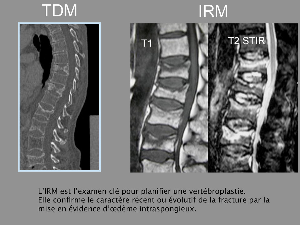 T1 T2 STIR TDM IRM L'IRM est l'examen clé pour ...