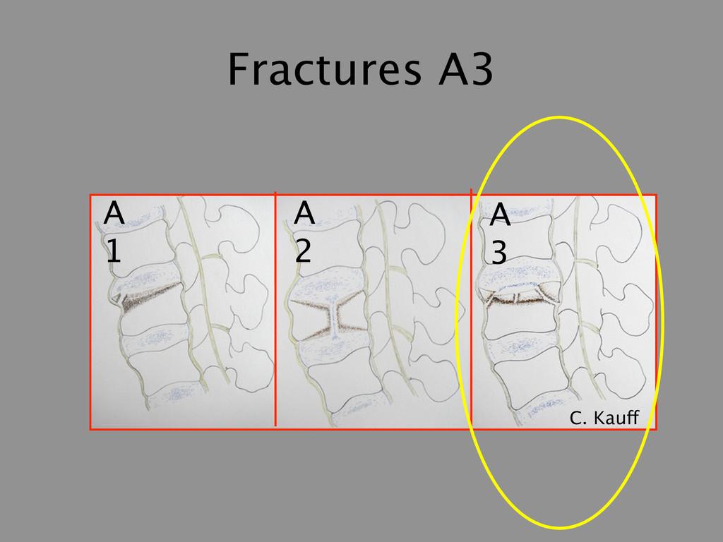 Fractures A3 A 1 A 2 A 3 C. Kauff