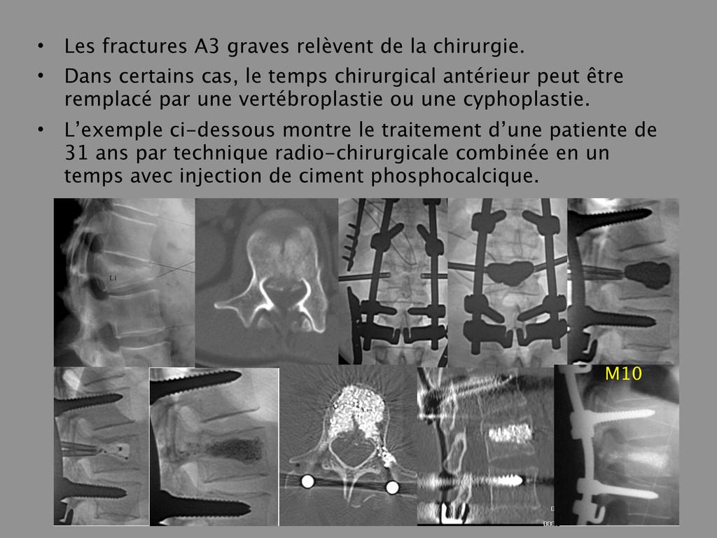 • Les fractures A3 graves relèvent de la chirur...