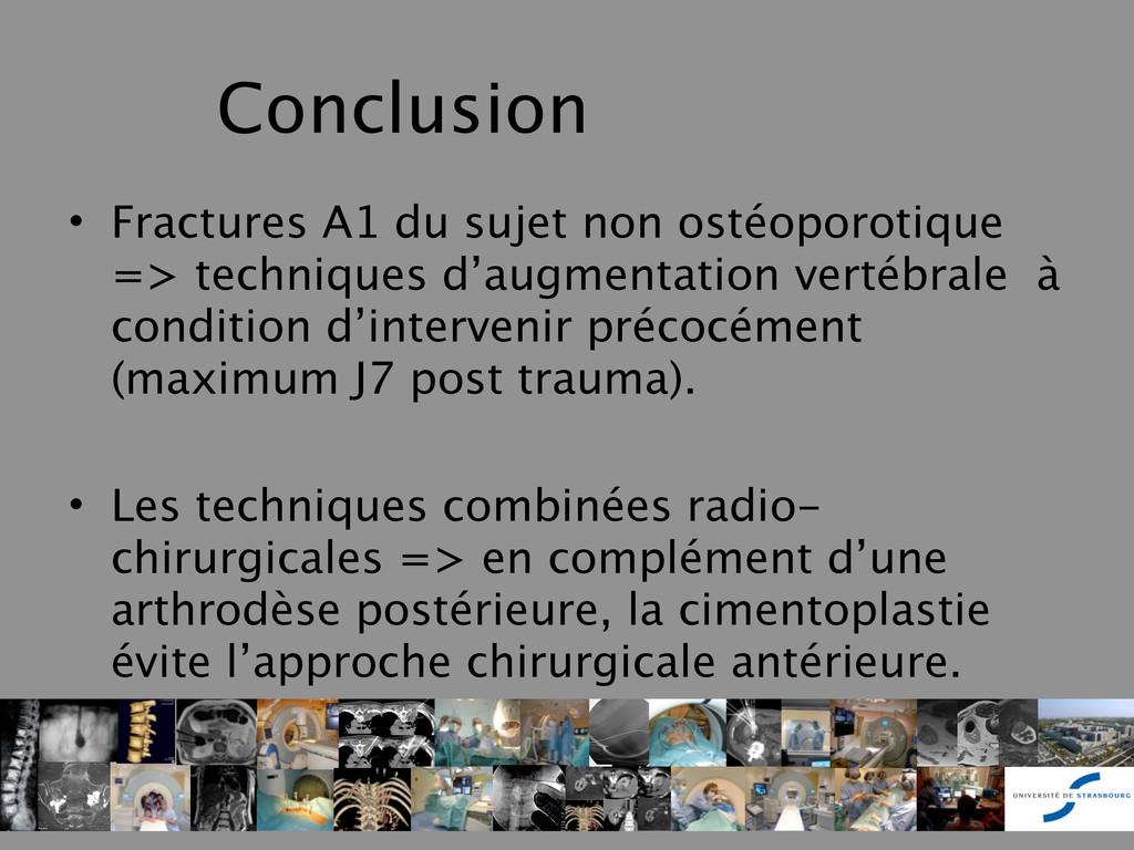 Conclusion • Fractures A1 du sujet non ostéopor...