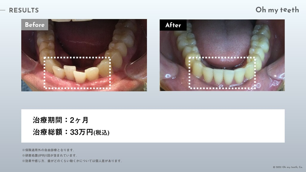 RESULTS © 2021 Oh my teeth, Co. Before ྍظؒɿϲ݄...
