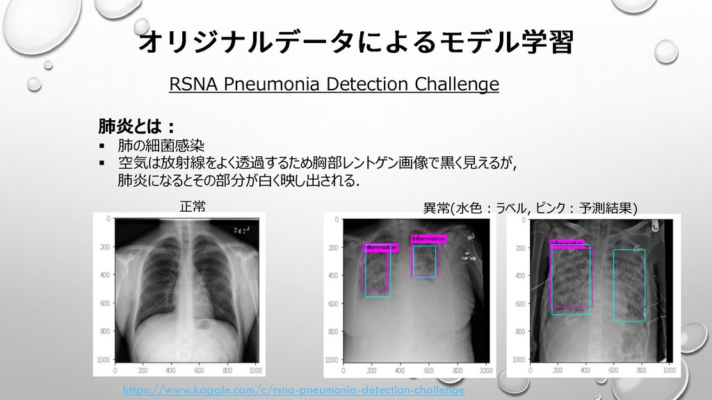 https://www.kaggle.com/c/rsna-pneumonia-detecti...
