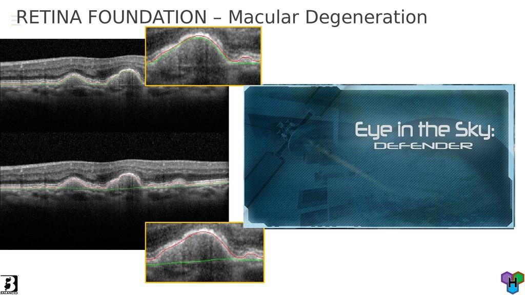 RETINA FOUNDATION – Macular Degeneration