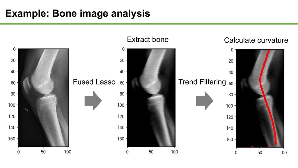 Example: Bone image analysis Extract bone Calcu...