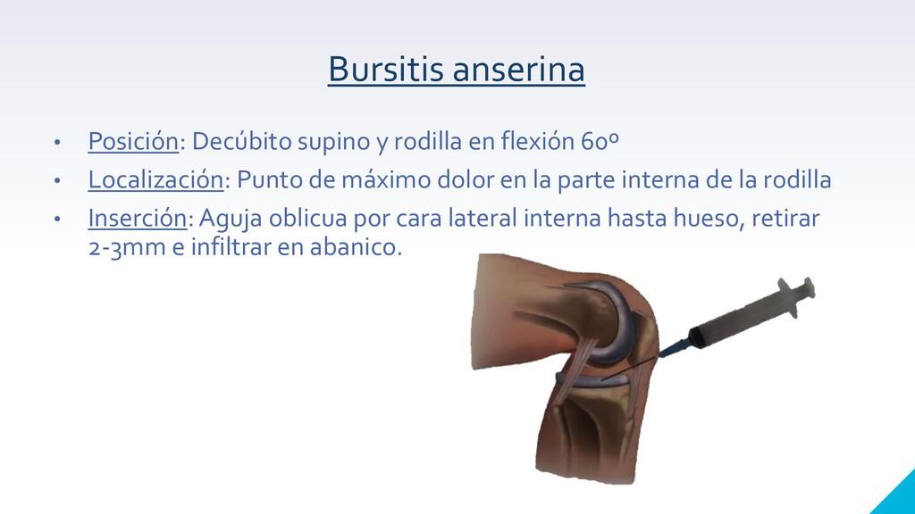 Bursitis anserina • Posición: Decúbito supino y...