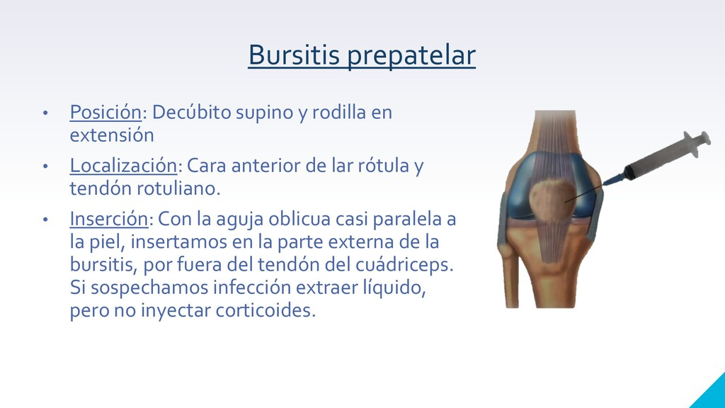 Bursitis prepatelar • Posición: Decúbito supino...