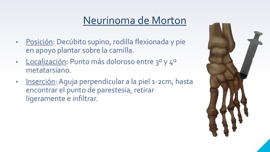 Neurinoma de Morton • Posición: Decúbito supino...