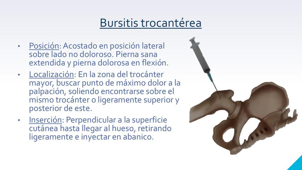 Bursitis trocantérea • Posición: Acostado en po...