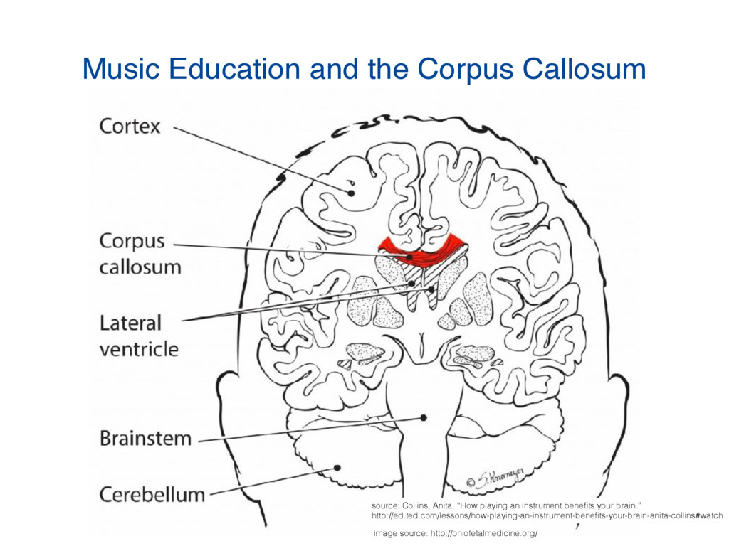 Music Education and the Corpus Callosum image s...