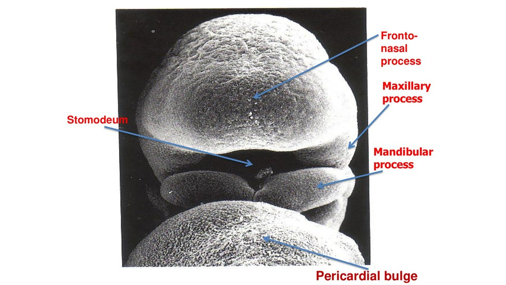 Maxillary process Mandibular process Stomodeum ...